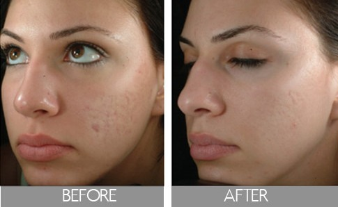 Cosmetic Dermatology Jacksonville FL