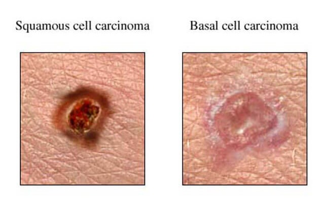 Squamous Cell Carcinoma Symptoms & Treatment