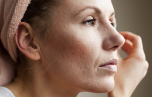 acne and scars treatment