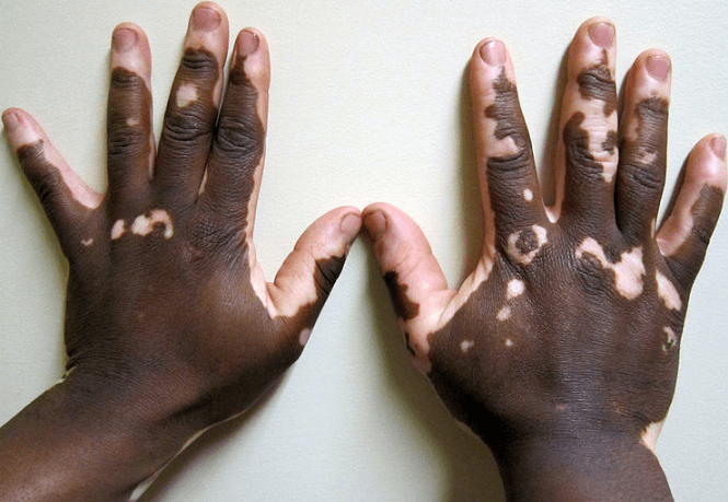 Vitiligo symptoms and treatment