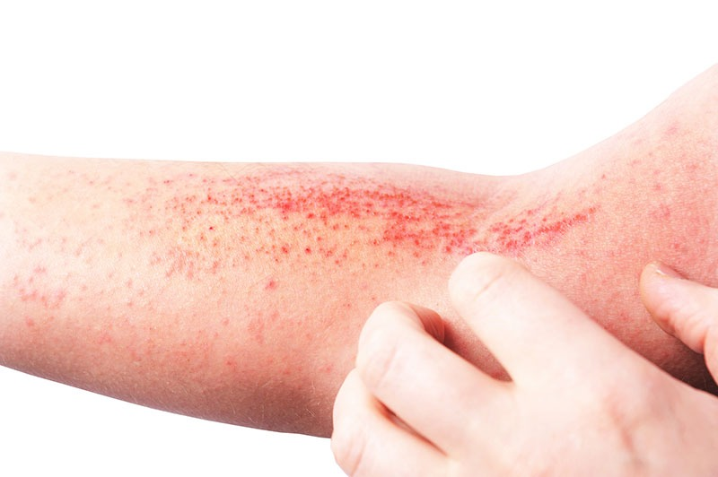 Park-Avenue-Dermatology-Hand-Foot-and-Mouth-Disease-Spots-On-Arm