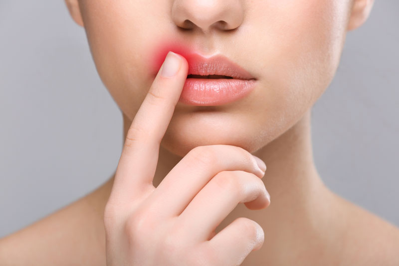 Park-Avenue-Dermatology-Cold-Sore-Woman-indicating-she-has-a-faver-blister-on-her-lip