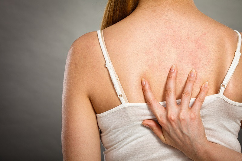 Park-Avenue-Dermatology-woman-reaching-her-hand-around-her-back-to-indicate-a-psoriasis-or-eczema-patch