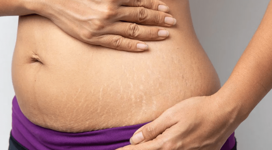 removing stretch marks by lasers